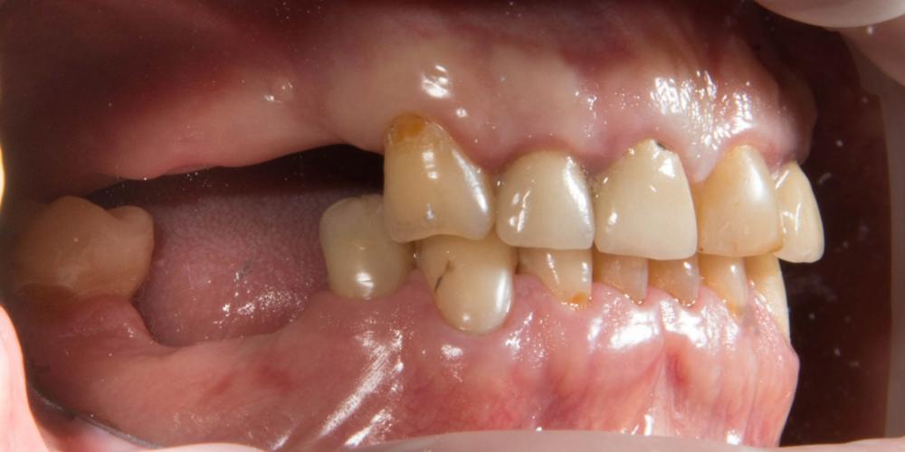 Вид справа до протезирования. Частично съемный протез на верхнюю и нижнюю челюсть