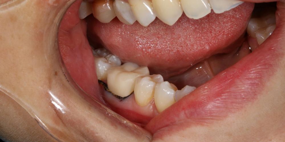 …и зафиксирована в полости рта. Жевательная функция и эстетика теперь восстановлены. На фото  Коронка сразу после фиксации. Десна, прилежащая к коронке, бледно-розового здорового цвета, через несколько дней десневой край полностью адаптируется к коронке, что обеспечит здоровье мягких  тканей окружающих зуб. Протезирование жевательного зуба безметалловой коронкой