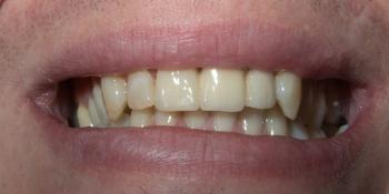 Установка моста из диоксида циркония на передние зубы фото после лечения