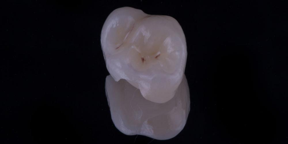 Восстановление зуба цельнокерамической коронкой