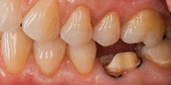Восстановление зуба цельнокерамической коронкой смоделированной в 3D фото до лечения