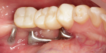 Цельнокерамические реставрации на зубах и имплантатах с опорой на индивидуальные абатменты фото до лечения