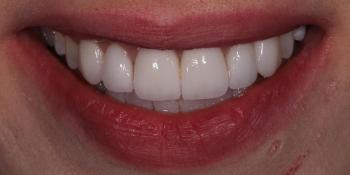 Виниры для придания эстетики передним зубам фото после лечения