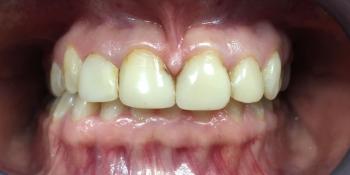 Восстановление эстетики передних зубов керамическими винирами фото до лечения