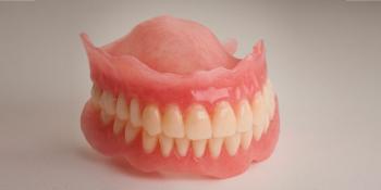Восстановление прикуса полными съемными протезами при отсутствии всех зубов фото до лечения