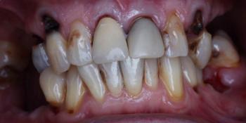 Протезирование зубов на 4 имплантах All-on-4 фото до лечения