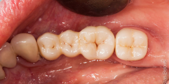 Протезирование зубов на имплантантах фото после лечения