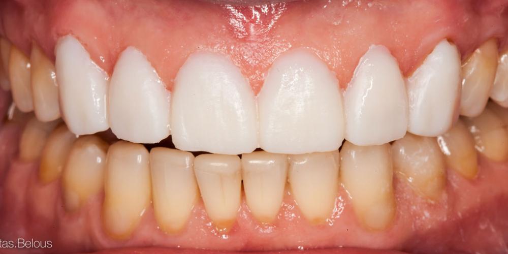 Примерка будущих зубов. Полное воссоздание верхнего зубного ряда