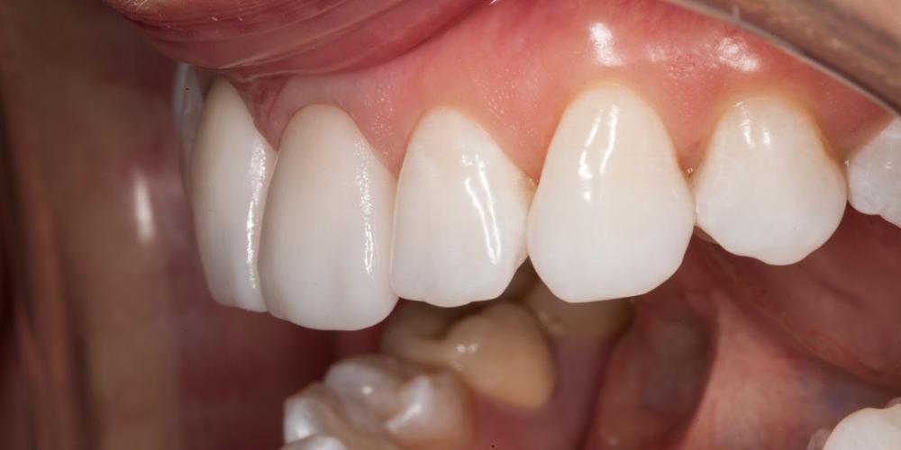 Цельнокерамические реставрации изготовлены под цвет отбеленных зубов. Проведена примерка, на которой пациентка одобрила форму и цвет реставраций. Установлена изоляция рабочего поля и выполнена фиксация цельнокерамических коронок. Ожидание белоснежной улыбки заняло 15 лет