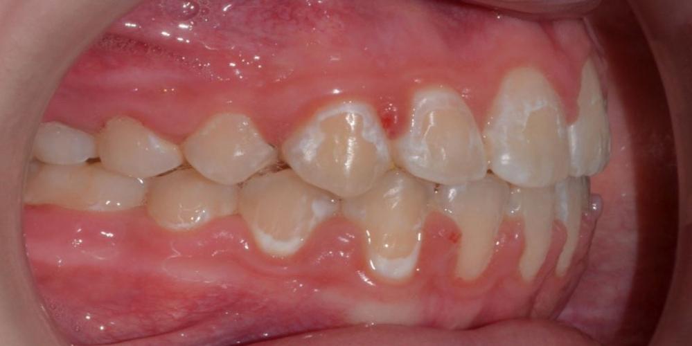 Результат исправления неровности зубов на верхней и нижней челюстях