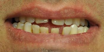Устранены последствия травмы, закрыты тремы и диастемы, улучшена эстетика фото до лечения