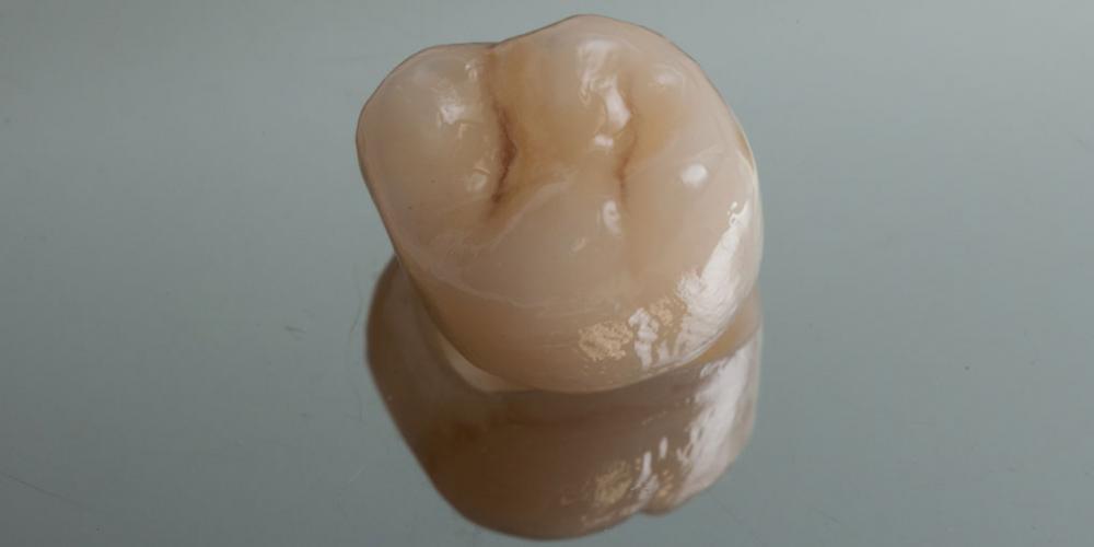 Цельнокерамическая коронка изготовлена на станке CEREC. Протезирование зуба после имплантации