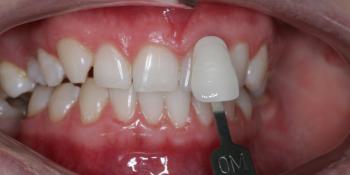 Результат отбеливания зубов ZOOM-4 с A1 до 0M фото после лечения