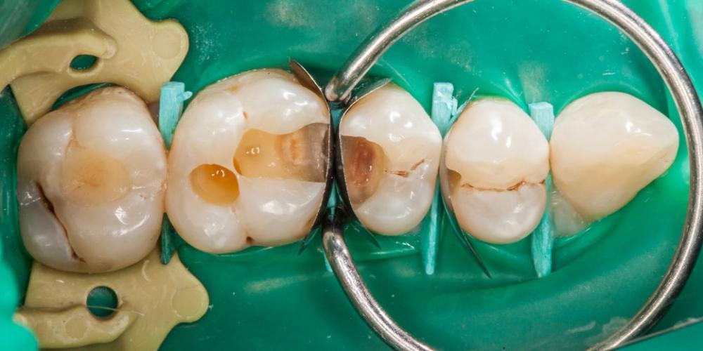Формируем боковые стенки зубов Лечение кариеса (беспокоило застревание пищи между зубами)