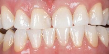 Отбеливания зубов холодным светом SmartBleach фото после лечения
