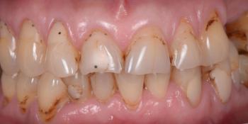 Тотальная стоматологическая реабилитация пациента: 6 дентальных имплантов, 28 керамических виниров фото до лечения