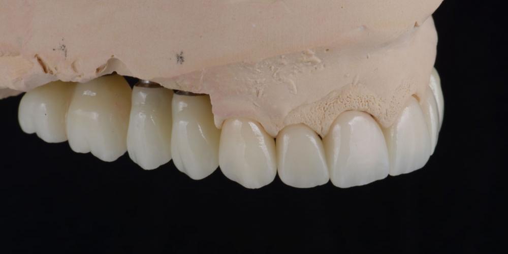 цельнокерамические реставрации на зубы (виниры, коронки) и импантаты на индивидуальных абатментах из диоксида циркония на модели 3 Тотальная стоматологическая реабилитация пациента с использованием 13-ти имплантов и 28 виниров