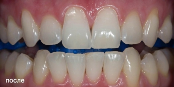 Фотографии отбеливания зубов по технологии ZOOM-4 фото после лечения