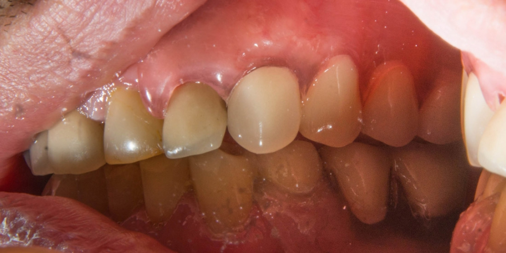 Вид слева после протезирования. Частично съемный протез на верхнюю и нижнюю челюсть