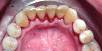 Устранение зубных отложений, кровоточивости и воспаления дёсен фото после лечения