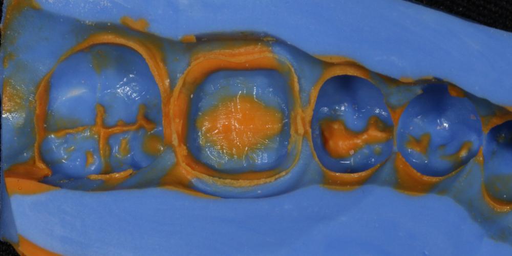 Получен точный оттиск для изготовления коронки Протезирование жевательного зуба безметалловой коронкой