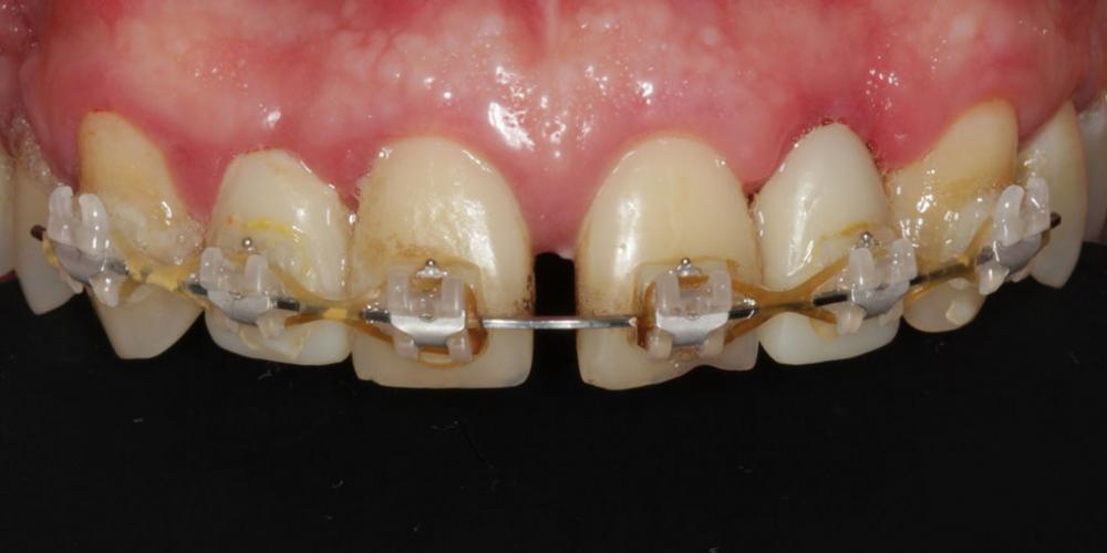 Этап ортодонтического лечения (исправление прикуса). Эстетическое протезирование передних верхних зубов с предварительным исправлением прикуса и импланта