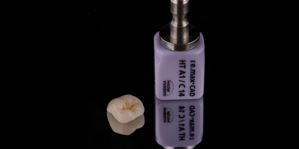 Смоделированная коронка Восстановление зуба цельнокерамической коронкой смоделированной в 3D