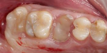Восстановление зуба имплантацией + синус-лифтинг - все в один этап фото до лечения