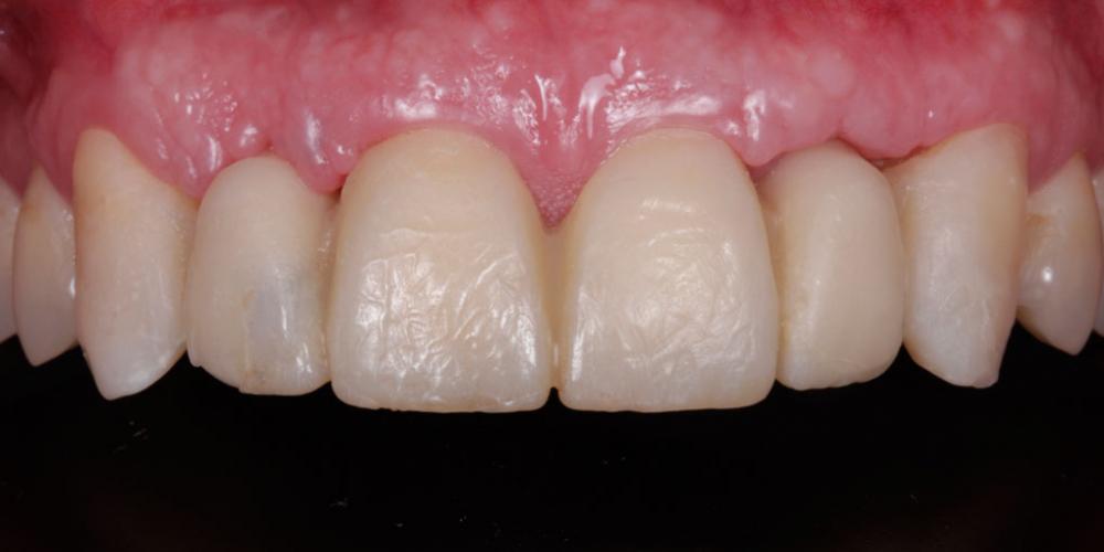 Примерка эскиза будущих зубов в полости рта. Эстетическое протезирование передних верхних зубов с предварительным исправлением прикуса и импланта