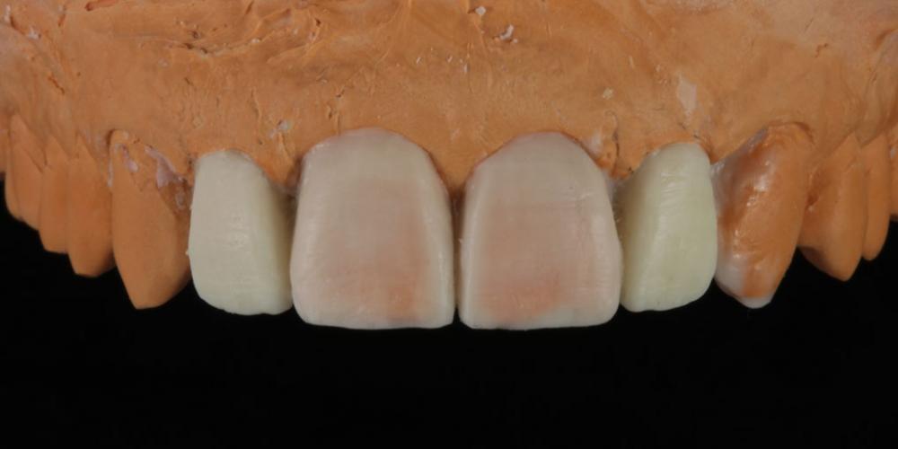 Восковой эскиз будущих зубов на модели. Эстетическое протезирование передних верхних зубов с предварительным исправлением прикуса и импланта