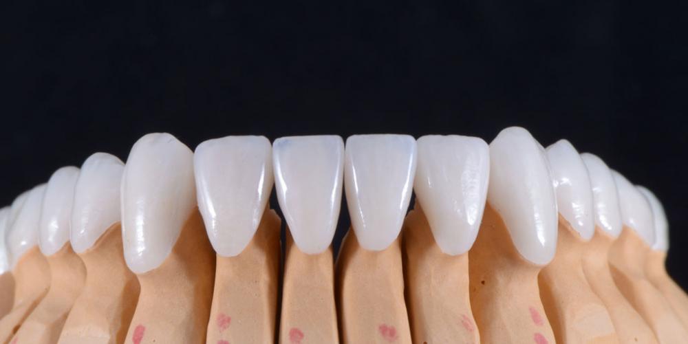 Цельнокерамические реставрации на зубы (виниры, коронки) и импантаты на индивидуальных абатментах из диоксида циркония на модели - нижняя челюсть. Тотальная реабилитация пациента, 5 имплантов, 28 виниров