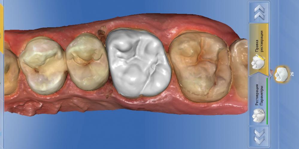 Выпадение пломбы из 26 зуба