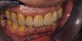 Восстановление передних зубов композитным материалом и коронками фото после лечения