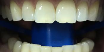Результат отбеливания зубов системой Зум 3 фото до лечения