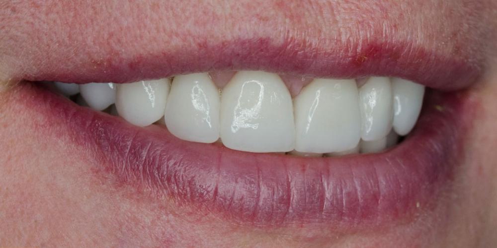 Комплексное лечение и создание красивой улыбки