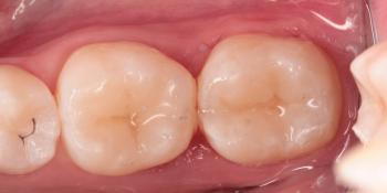 Художественная реставрация жевательных зубов японским сфеерическим гибридным композитом фото после лечения