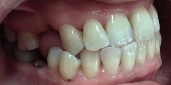 Установка металлической брекет-системы для выравнивания зубного ряда фото до лечения
