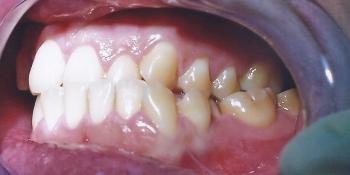 Мезиальный перекрестный прикус со смещением челюсти влево фото до лечения