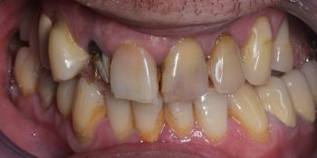Лечение и протезирование зубов вкладками и металлокерамическими коронками фото до лечения