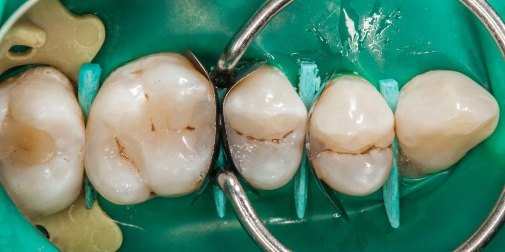 Завершение реставрации Лечение кариеса (беспокоило застревание пищи между зубами)