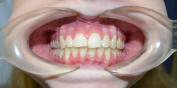 Результат выравнивания зубов на нижней и верхней челюстях фото после лечения