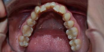 Результат исправления кривых зубов с помощью брекетов фото до лечения