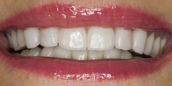 Установка виниров на передние зубы верхней и нижней челюсти фото после лечения