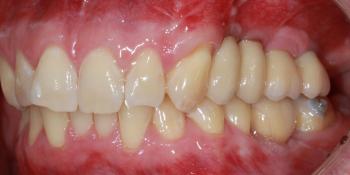 Отсутствие зубов в течение длительного времени, затрудненное пережевывание пищи, эстетический дефект фото после лечения