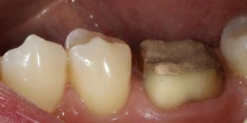 Протезирование жевательного зуба безметалловой коронкой фото до лечения