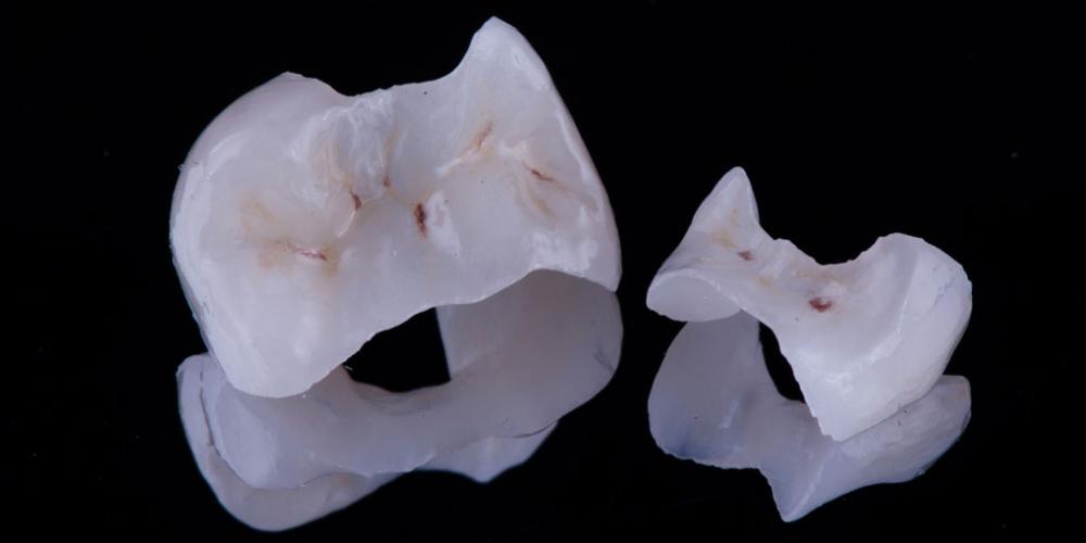 Начали лечение кариеса на одном зубе, а в итоге сделали - 2, цельнокерамическими вкладками