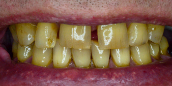 Восстановление зубов с помощью имплантов и керамических коронок  фото до лечения