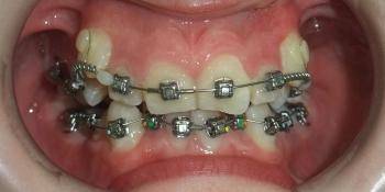 Исправление скрученного положения зубов верхнего и нижнего зубного ряда фото до лечения