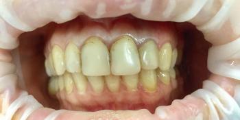 Восстановление эстетики передних зубов керамическими винирами, 4 винира фото до лечения