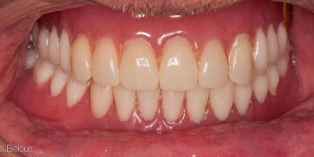 Восстановление прикуса полными съемными протезами при отсутствии всех зубов фото после лечения